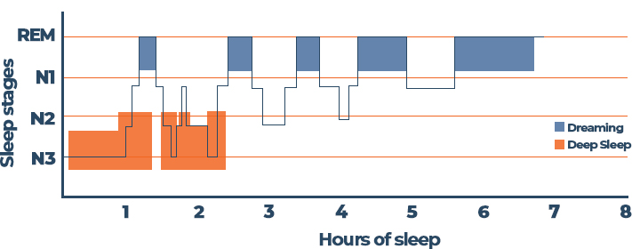 Stages Of Sleep Graph