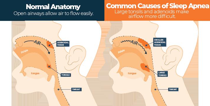 Normal vs Abnormal Respiratory System Anatomy