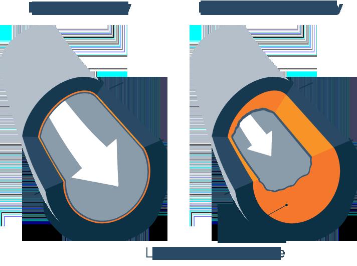 Illustration of Coronary Artery Disease