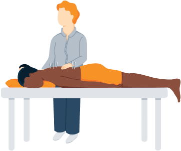 Illustration of a Woman Having Body Acupuncture Treatment
